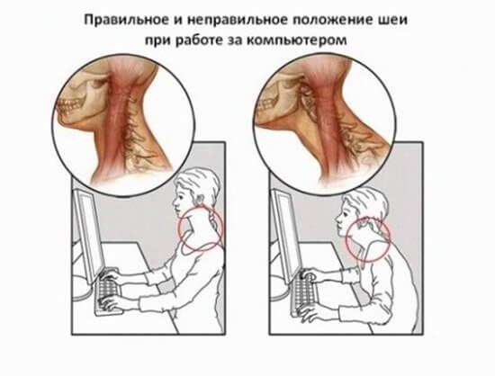 Гимнастика Шишонина для шеи при остеохондрозе шейного отдела с видео, причинами и противопоказаниями
