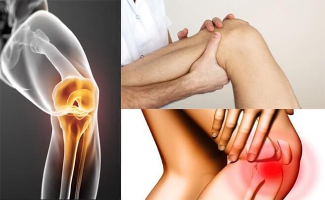 УЗИ коленного сустава (лекция на Диагностере)